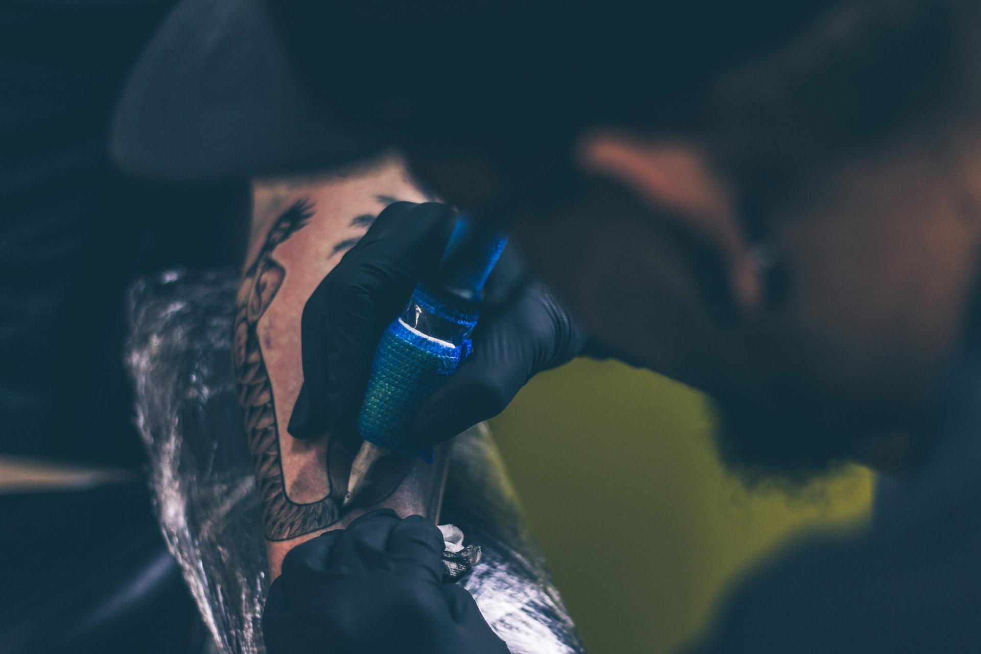 Tatto-Entfernung auf Trierer Art